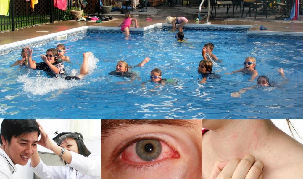 Bệnh dễ mắc phải khi bơi lội